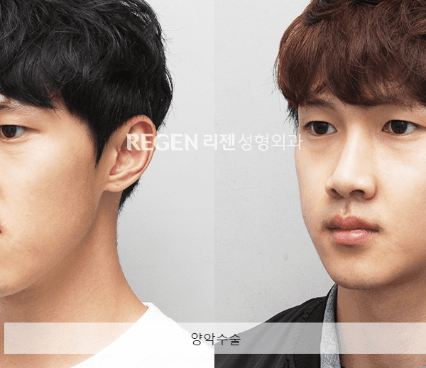 double jaw two korea seoul plastic surgery before and after